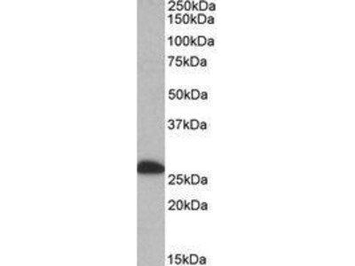 Goat Anti-ETFB Antibody