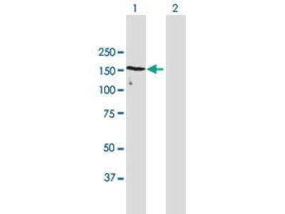 Mouse Anti-UACA Antibody