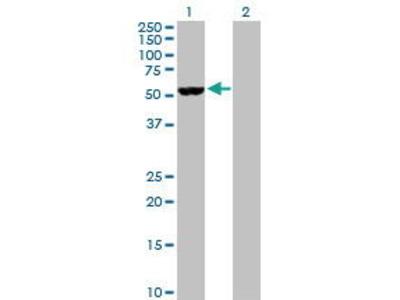 Rabbit Anti-NOVA1 Antibody