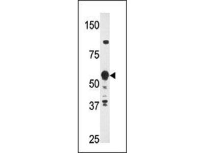 Rabbit Anti-PRF-1, ID Antibody