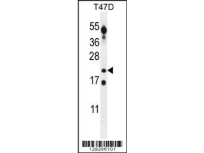 Rabbit Anti-CT45A, ID Antibody