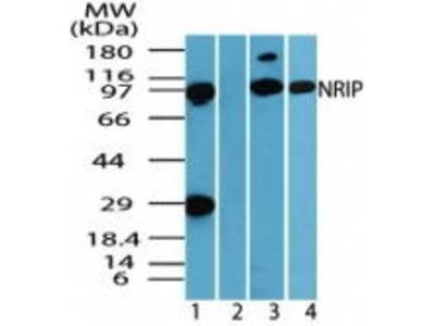 Rabbit Anti-DCAF6 Antibody