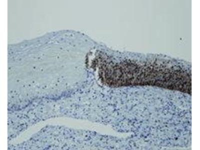 Mab Rb x human p16 antibody