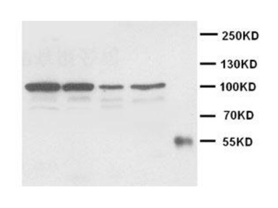 Rabbit Anti-Cadherin-2 Antibody