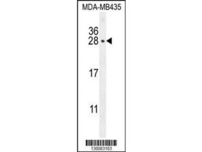 Rabbit Anti-CSH1, CT Antibody