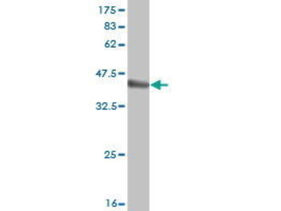 Mouse Anti-RBCK1 Antibody