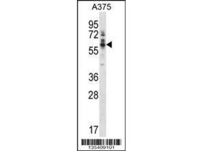 Rabbit Anti-Ptk6, NT Antibody