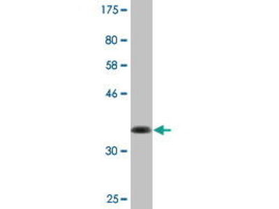 Mouse Anti-ABI3BP Antibody