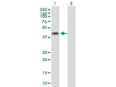 Mouse Anti-TMOD1 Antibody