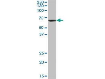 Mouse Anti-DAK Antibody