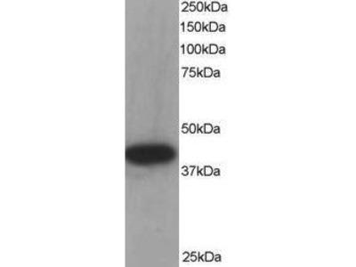 Goat Anti-ACADM Antibody