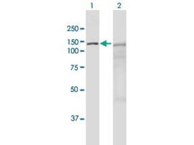 Mouse Anti-NOXIN Antibody
