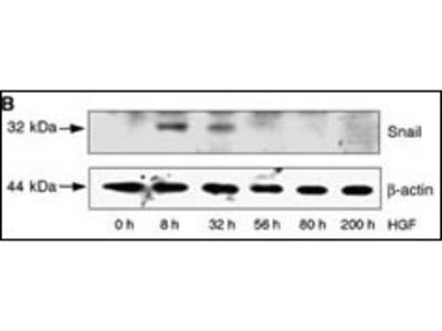 Rabbit Anti-SNAIL, NT Antibody