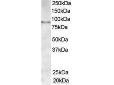 Goat Anti-AKAP3 Antibody