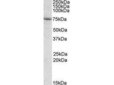 Goat Anti-tRNA Synthetase, Alanyl Antibody