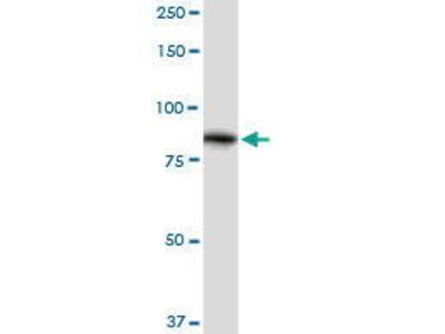 Rabbit Anti-ALDH16A1 Antibody