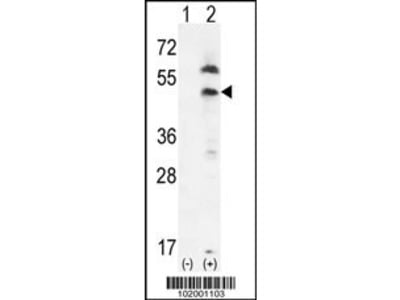 Rabbit Anti-Platelet Derived Growth Factor Receptor-like Protein, CT Antibody