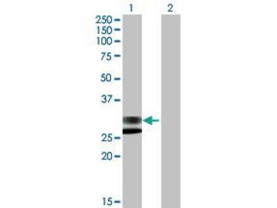 Mouse Anti-LRRC61 Antibody