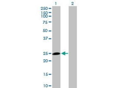 Mouse Anti-HECTD3 Antibody