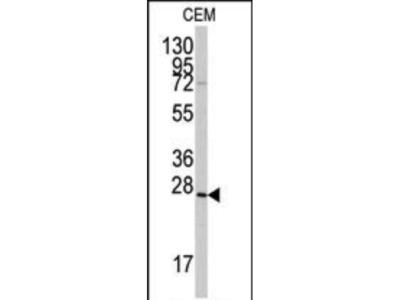 Rabbit Anti-GREMLIN, CT Antibody