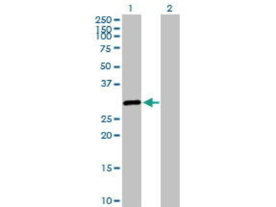 Rabbit Anti-SALL2 Antibody