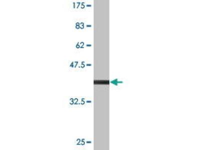 Mouse Anti-SGCA Antibody