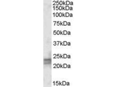 Goat Anti-ARL4D Antibody