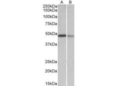 Goat Anti-TXNDC5 Antibody