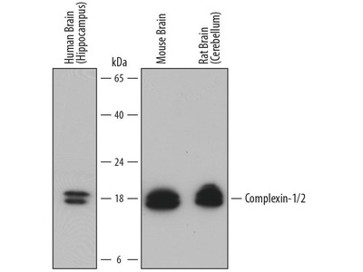 Goat Anti-Complexin-1 Antibody