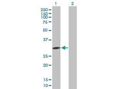 Mouse Anti-QPCTL Antibody