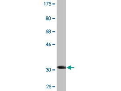 Mouse Anti-CIR Antibody