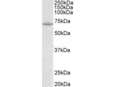 Goat Anti-SLC6A8 Antibody