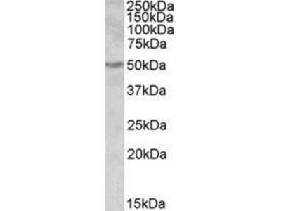 Goat Anti-ALDH9A1 Antibody