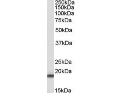 Goat Anti-Superoxide Dismutase 1 Antibody