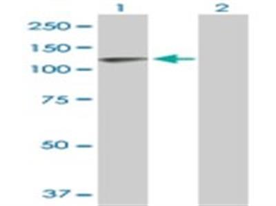 Thyroid Peroxidase Antibody