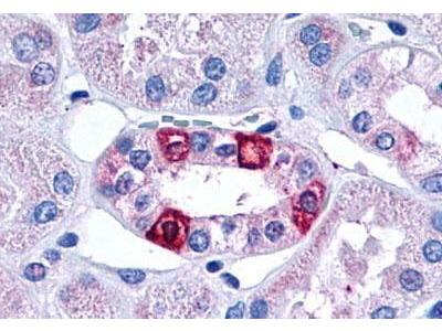 Rabbit Anti-5HT1F Receptor Antibody
