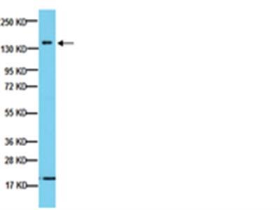 Anti-Neurofilament 160 kDa Antibody, clone NN18