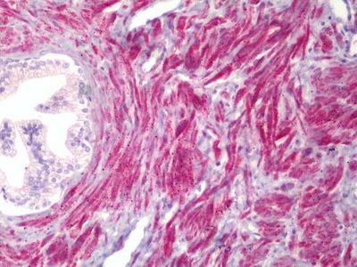 Rabbit Anti-PMEPA1, ID Antibody