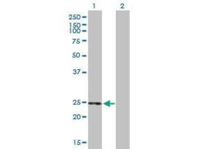 Mouse Anti-THEM5 Antibody