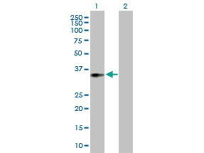 Mouse Anti-ACOT8 Antibody