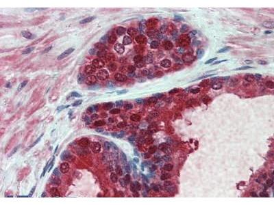 Mouse Anti-UMP-CMP Kinase Antibody