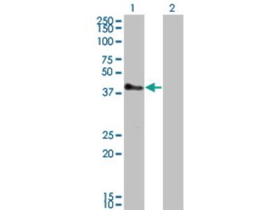 Mouse Anti-TRIM52 Antibody
