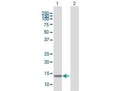 Mouse Anti-PCNA-associated Factor Antibody