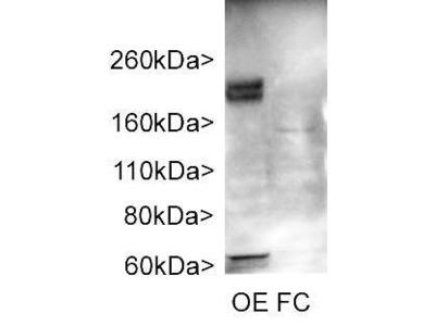 Rabbit Anti-Adenylate Cyclase Type 3 Antibody