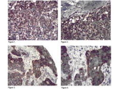 Rabbit Anti-PP6R3 Antibody