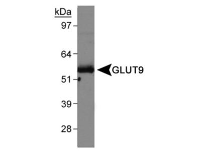 GLUT9 Antibody