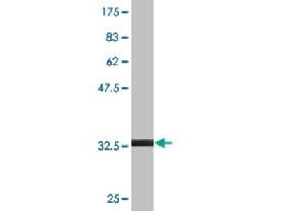 Mouse Anti-CCL18 Antibody