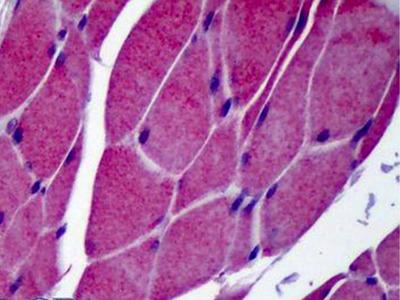 Rabbit Anti-TRPC3 Antibody