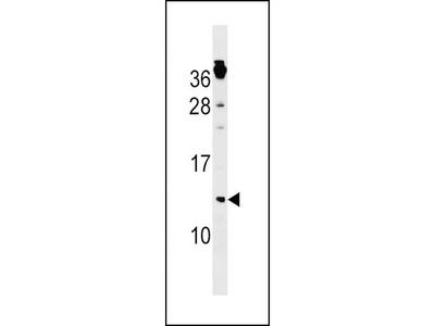 Rabbit Anti-CKS1B, ID Antibody