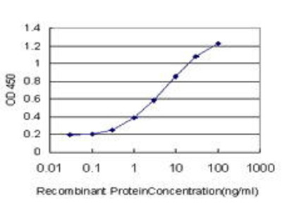 Mouse Anti-PIPMT Antibody